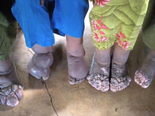 FOOTWORK: THE INTERNATIONAL PODOCONIOSIS INITIATIVE PODOCONIOSIS IN WESTERN ETHIOPIA