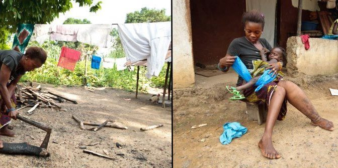 Help Free Sierra Leone from Its Elephantiasis Epidemic