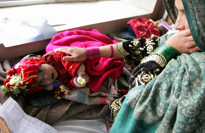 A child at the Indira Gandhi hospital in Kabul.