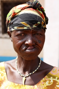 A sexual violence survivor in Paoua, Central African Republic, shows the scars left by a fleeting bullet.